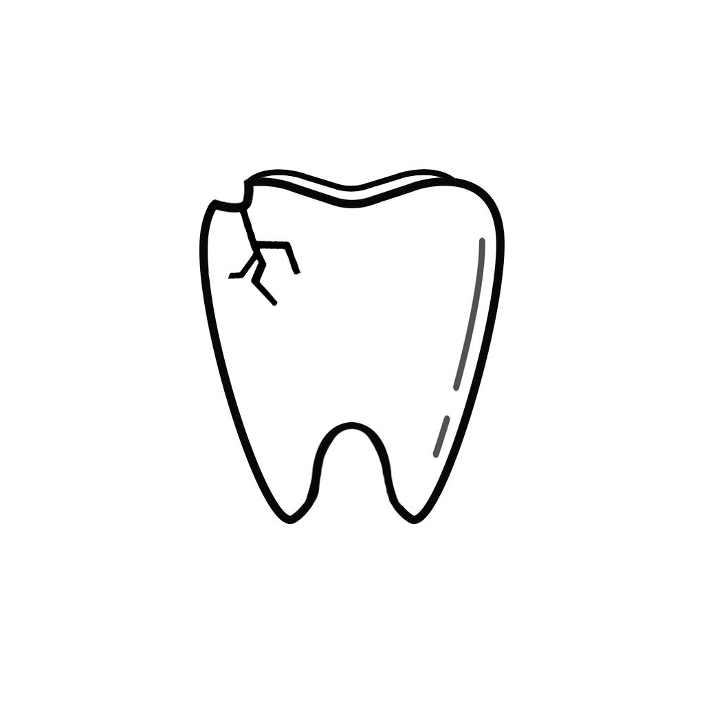 Family Dentist in Norfolk NE | I Chipped a Tooth! What Can I Do?